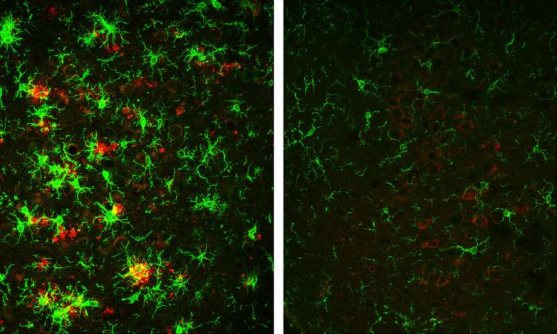 Before and after images of amyloid plaques in the brains of mice
